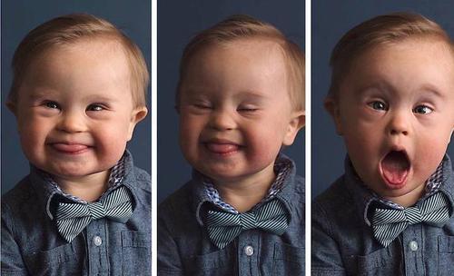 Baby met Down afgewezen als model