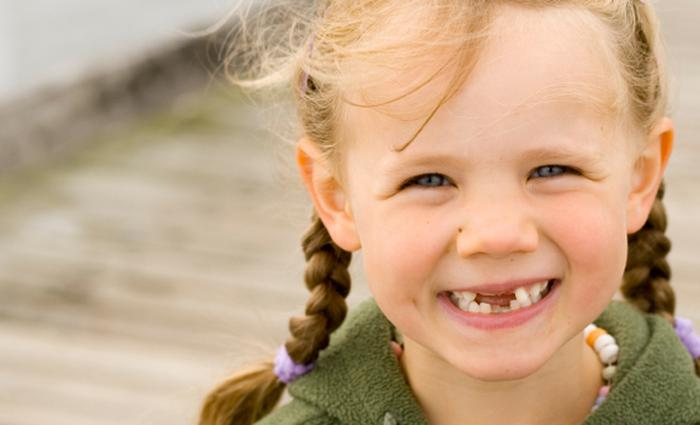 ontbrekende tanden kind