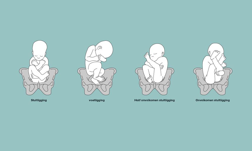 ligging baby in de buik