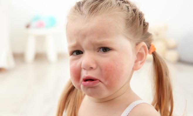 Allergische reactie bij kind: wat te doen?