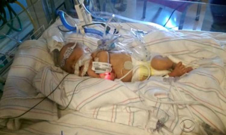 Premature baby krijgt nieuw hart