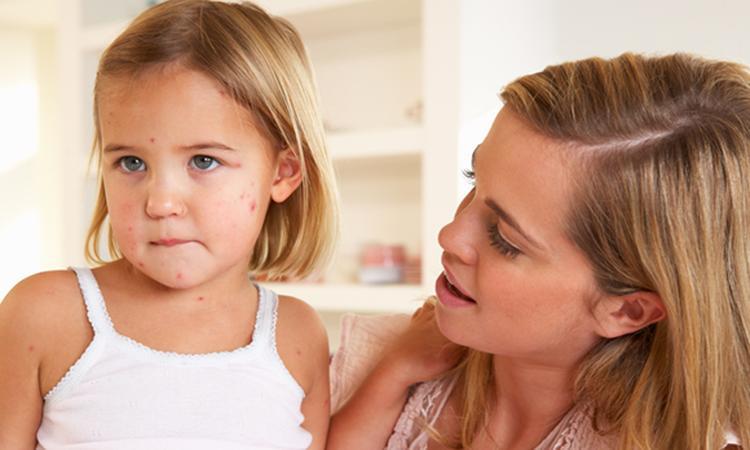 Waterpokken En Zwanger Ouders Van Nu