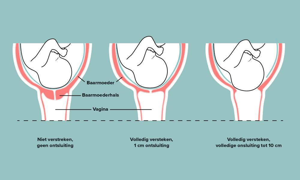 bevallingspijn