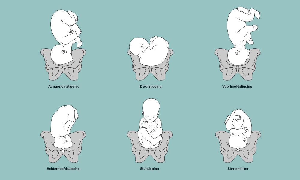 liggingen in de baarmoeder