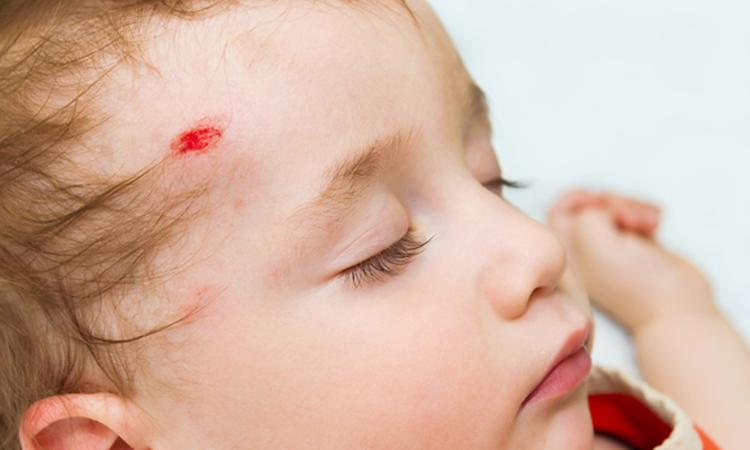 Bloedende wond bij mond, oor of oog