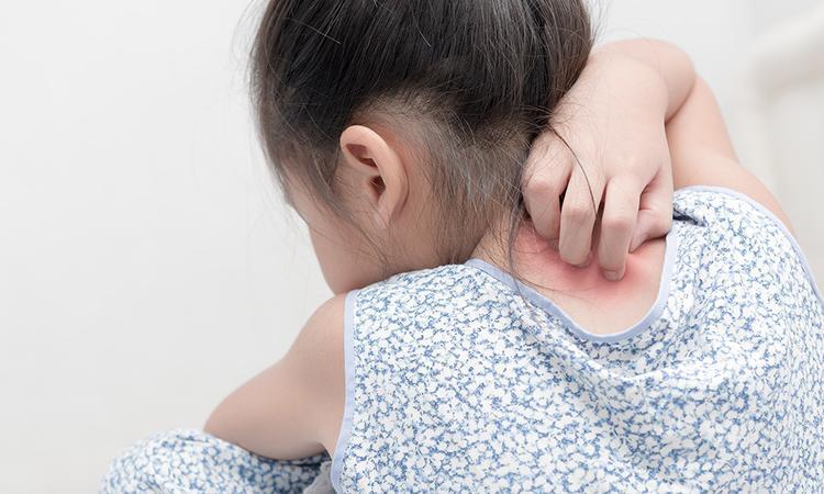 Netelroos bij baby's en kinderen