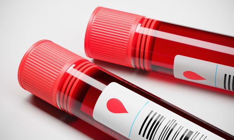 Bloedonderzoek tijdens zwangerschap